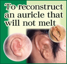 To reconstruct an auricle that will not melt
