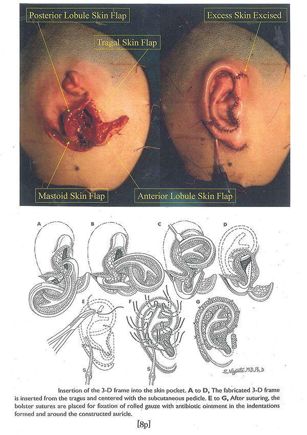 Accuracy evaluation on proportions of the reconstructed auricle ...