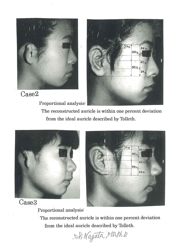 Accuracy evaluation on proportions of the reconstructed auricle / microtia surgery.