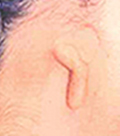 1st and 2st branchial syndrome:Hemifacial microsomia